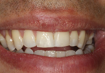 After - London Bridge Dental Practic