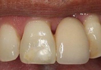 Before - London Bridge Dental Practic