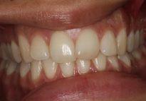 Before - London Bridge Dental Practice