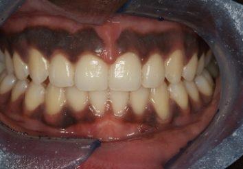 After - London Bridge Dental Practic