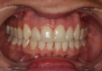 After - London Bridge Dental Practice