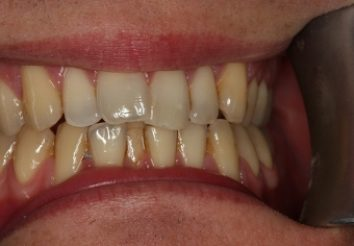 Before - London Bridge Dental Practic